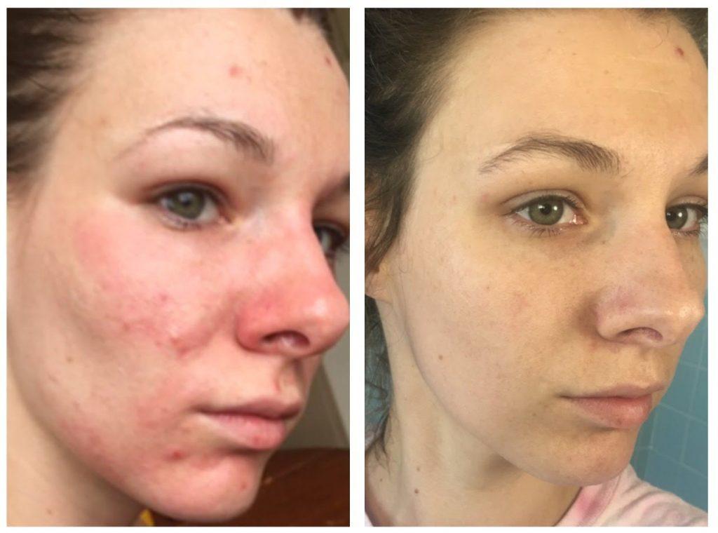 Máscara de aspirina antes e depois: Resultado