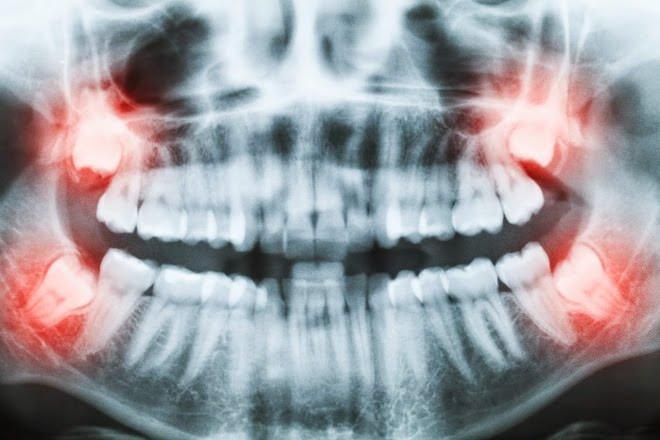 dente siso inflamado