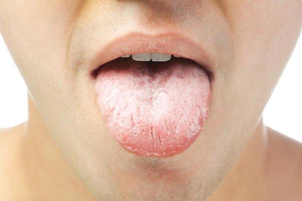 Língua Branca: O que pode ser? Como Tirar