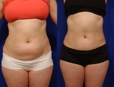 abdominoplastia antes e depois